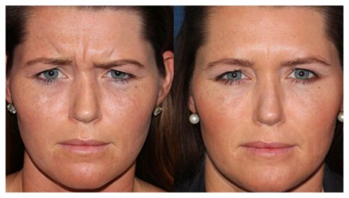 Botox Treatment | Injections and Injectable Fillers - Dr. Sana Younas