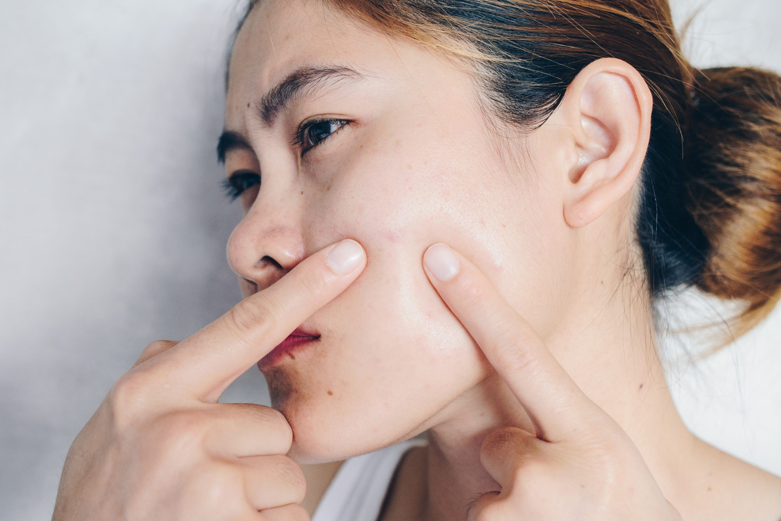 Acne Treatment in Lahore | Laser Treatment For Acne | Dr. Sana Younas